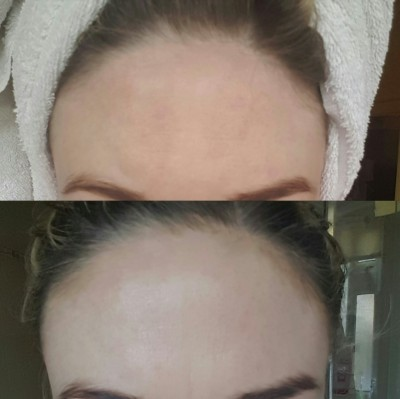 Before and after TianDe's Nano Corrector